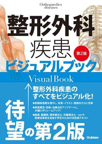 整形外疾患ビジュアルブック第2版